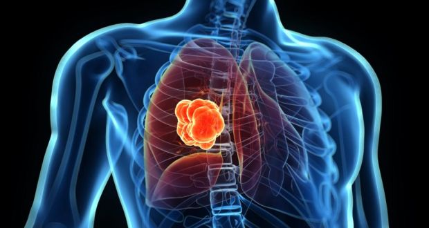 Immunology in Lung Cancer