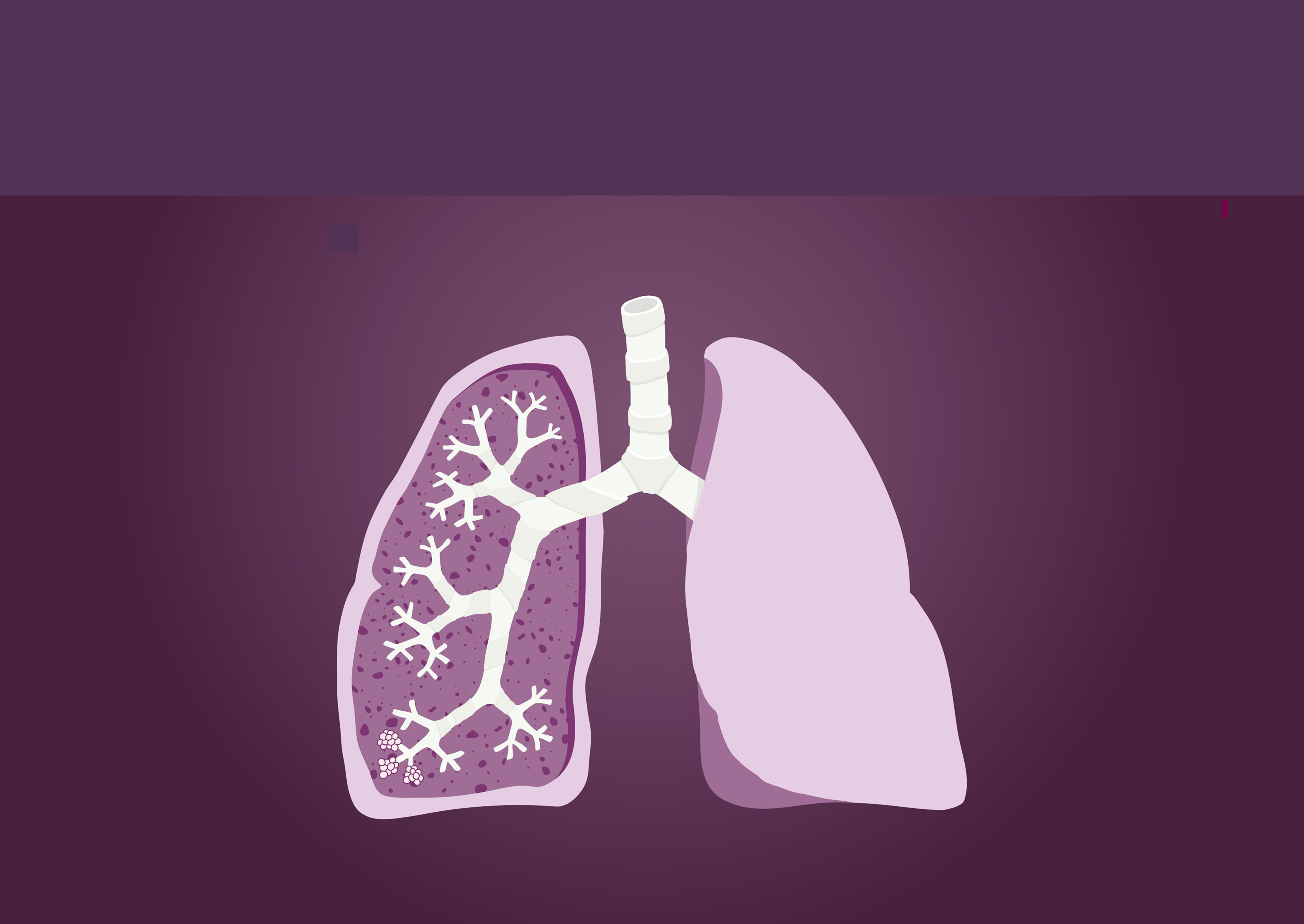 COPD_image