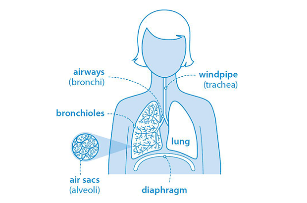 Diagram_lungs_pulmonary_fibrosis